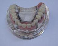 Denture001